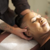 Brooklyn Acupuncture by Dr. Philip Trigiani